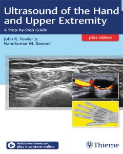 Ultrasound of the Hand and Upper Extremity PDF