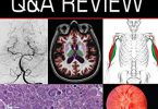 Neurology Q&A Review PDF