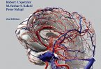 Neurovascular Surgery 2nd Edition PDF