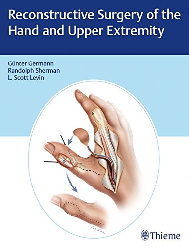 Reconstructive Surgery of the Hand and Upper Extremity PDF