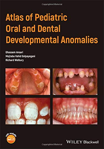Atlas of Pediatric Oral and Dental Developmental Anomalies PDF