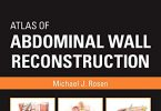 Atlas of Abdominal Wall Reconstruction 2nd Edition PDF