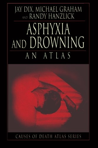 Asphyxia and Drowning PDF
