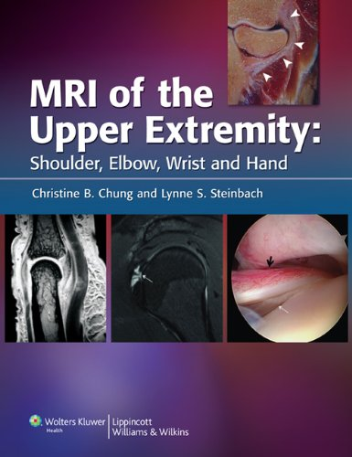 MRI of the Upper Extremity PDF
