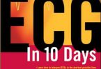 ECG in 10 Days 2nd Edition PDF