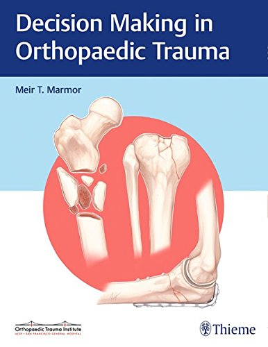 Decision Making in Orthopaedic Trauma PDF
