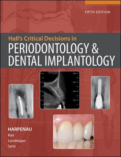 Hall's Critical Decisions in Periodontology 5th Edition PDF