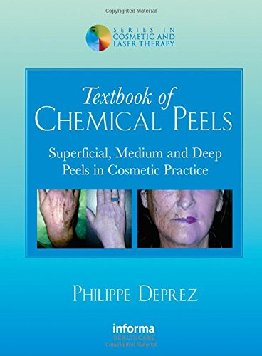 Textbook of Chemical Peels PDF
