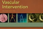 Practical Peripheral Vascular Intervention 2nd Edition PDF
