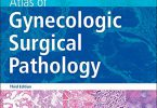 Atlas of Gynecologic Surgical Pathology 3rd Edition PDF