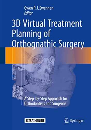 3D Virtual Treatment Planning of Orthognathic Surgery PDF
