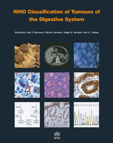 WHO Classification of Tumours of the Digestive System 4th Edition PDF