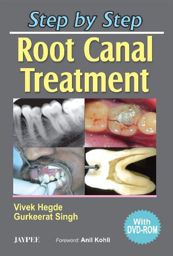 Step by Step Root Canal Treatment PDF