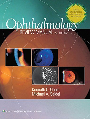 Ophthalmology Review Manual 2nd Edition PDF