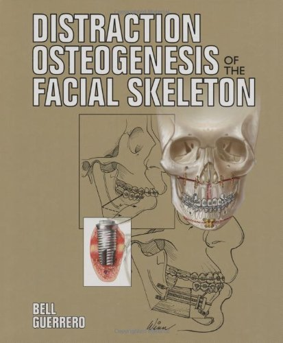 Distraction Osteogenesis of the Facial Skeleton  PDF