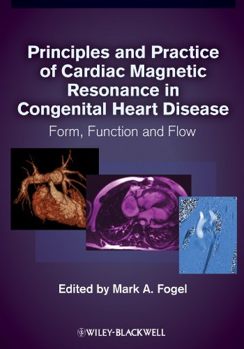 Principles and Practice of Cardiac Magnetic Resonance in Congenital Heart Disease PDF