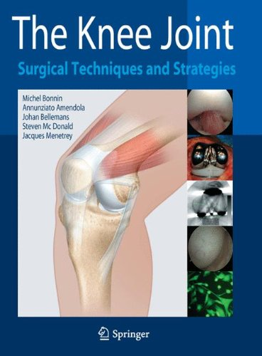 The Knee Joint Surgical Techniques and Strategies PDF