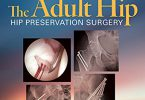 The Adult Hip PDF