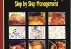Gastrointestinal Surgery Step by Step Management PDF