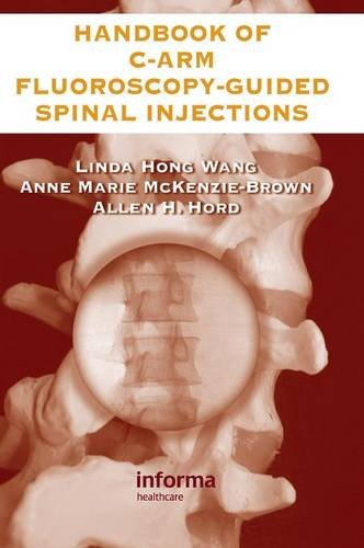 The Handbook of C-Arm Fluoroscopy-Guided Spinal Injections PDF