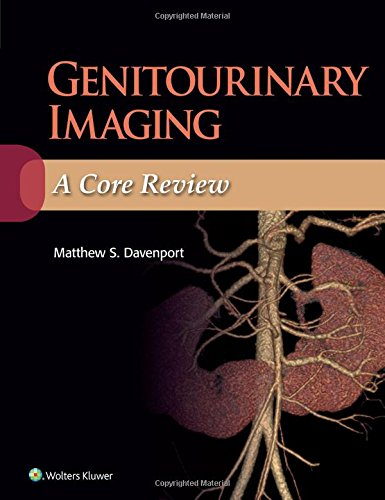 Genitourinary Imaging A Core Review PDF