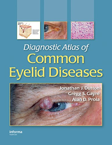 Diagnostic Atlas of Common Eyelid Diseases PDF