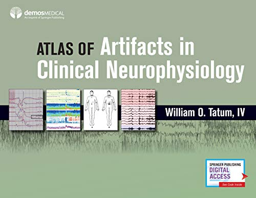 Atlas of Artifacts in Clinical Neurophysiology PDF