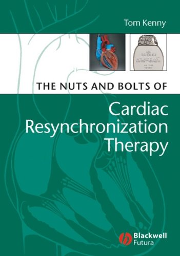 The Nuts and Bolts of Cardiac Resynchronization Therapy PDF