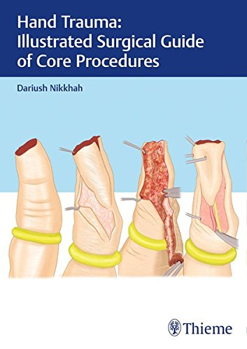 Hand Trauma Illustrated Surgical Guide of Core Procedures PDF