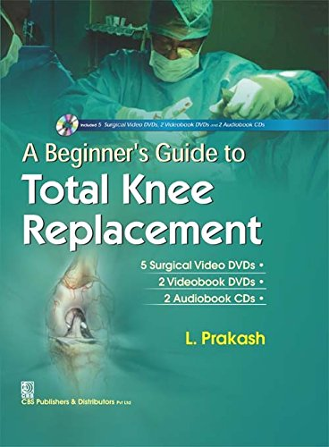 A Beginner s Guide to Total Knee Replacement PDF