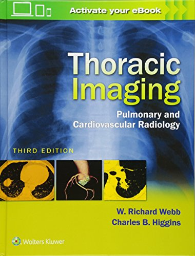 Thoracic Imaging Pulmonary and Cardiovascular Radiology 3rd Edition PDF