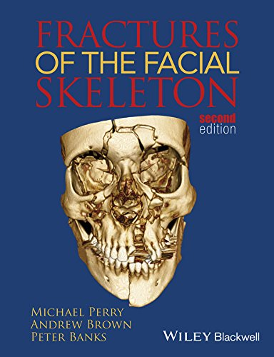 Fractures of the Facial Skeleton 2nd Edition PDF Free Download