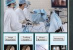 Visual Tracking in Conventional Minimally Invasive Surgery PDF