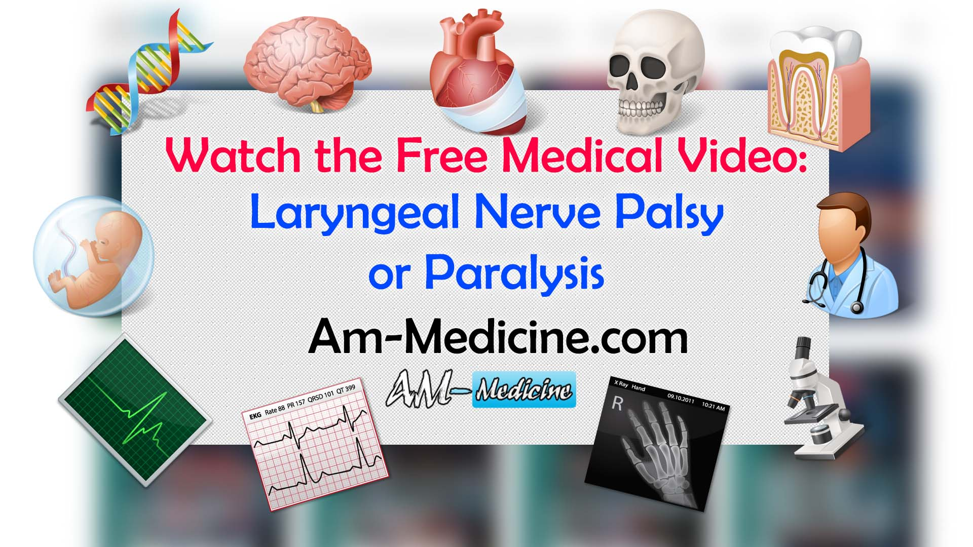 Laryngeal Nerve Palsy or Paralysis (Video)