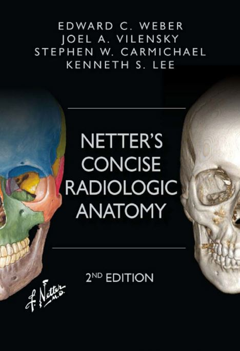 Netter's Concise Radiologic Anatomy 2nd Edition PDF