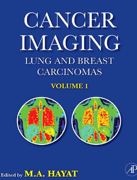Cancer Imaging Lung and Breast Carcinomas Volume 1 PDF