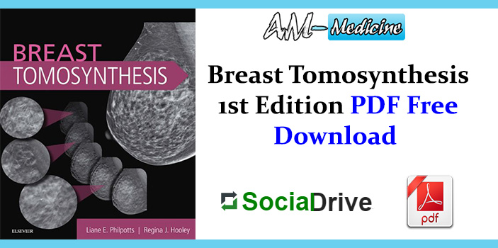 Breast Tomosynthesis 1st Edition PDF